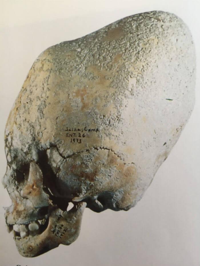 aspecto fisico mayas deformacion craneal